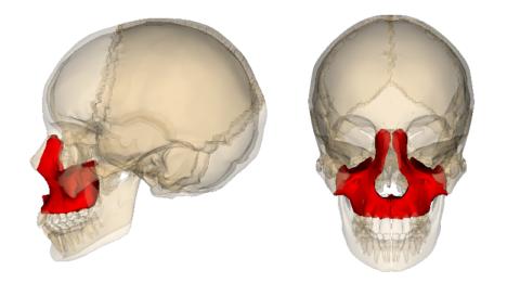 Переломы верхней челюсти являются часто сложными сочетанными травмами и чреваты различными осложнениями.