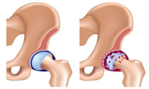 После травм может возникать такой недуг, как посттравматический коксартроз.