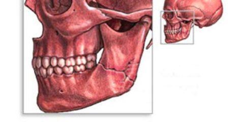 Повреждение костных тканей челюсти может стать следствием заболеваний, например, остеомиелита.