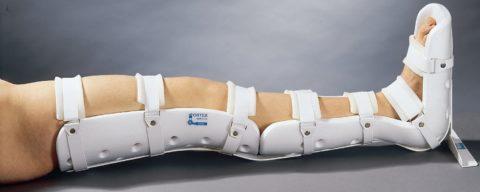 Поврежденную ногу ребенка гипсуют или фиксируют ортезом.