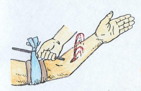 При наличии кровотечения из раны следует наложить давящую повязку.