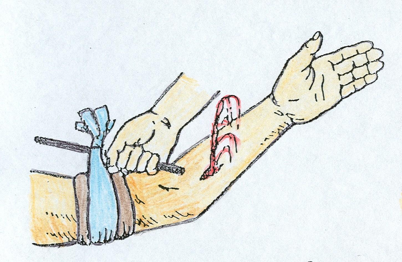 Как сделать закрутку на руке