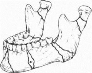 При осколочном переломе челюсти могут образовываться один (или несколько) отдельных мелких фрагментов.