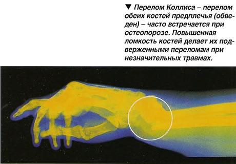 При остеопорозе переломы предплечья могут возникать при незначительных травмах и даже при нажатии на конечность.