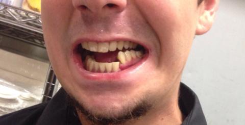 При переломе челюсти со смещением происходит изменение местоположения травмированных костей.