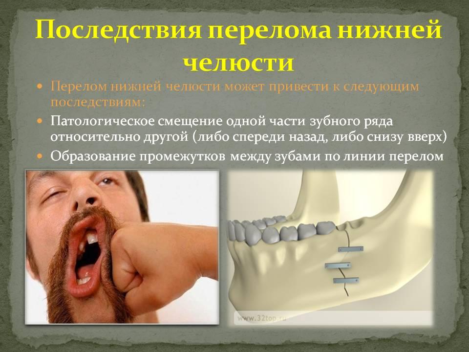 Шинирование зубов при переломе нижней челюсти