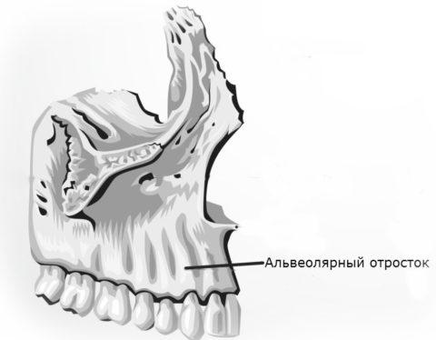 При сильной травме могут возникать переломы альвеолярных отростков челюстей.