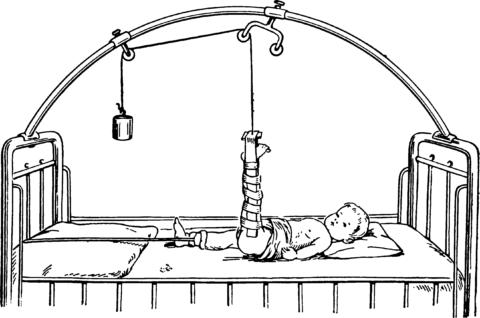 При сложных травмах бедра используют скелетное вытяжение.