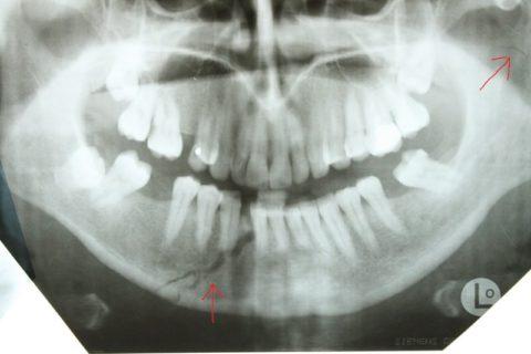 При закрытом переломе не происходит повреждение слизистых и кожи костными отломками.