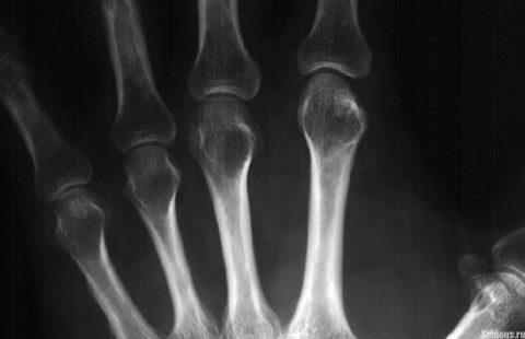 Признаки околосуставного остеопороза и утончения фаланг пальцев