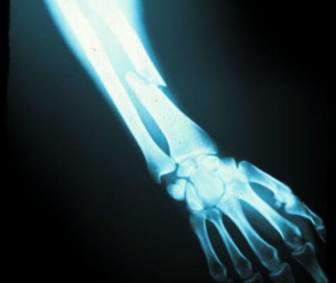 Рентгенограмма перелома лучевой кости предплечья со смещением