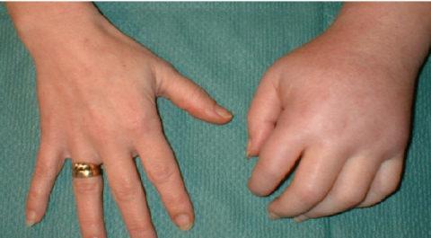 Синдром Зудека (слева), справа – нормальная кисть
