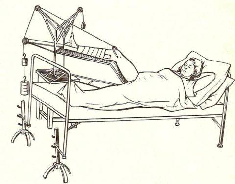 Скелетное вытяжение