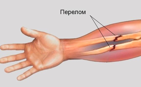 Закрытая травма плечевого сустава мкб 10 лечение листьями хрена коленного сустава