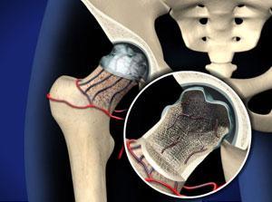 В результате нарушения кровообращения и трофики костных тканей, может возникнуть такое грозной осложнение, как некроз костей.