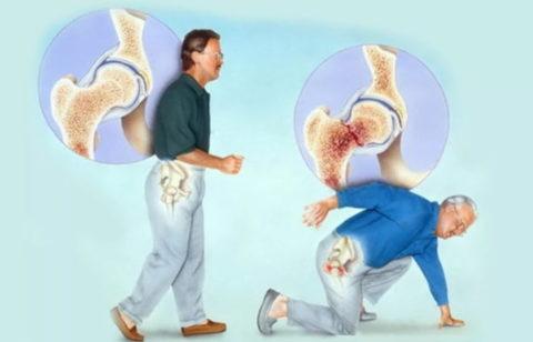 Вертельный тип перелома как наиболее распространенный у пожилых людей