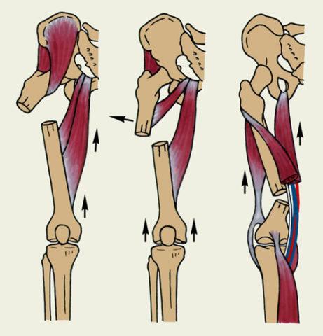 Возможные смещения поврежденной бедренной кости