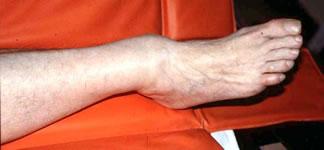 Визуально определяется подвывих стопы кзади