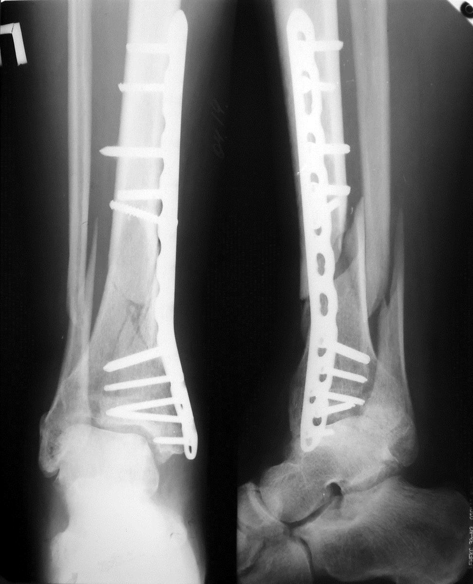 Металлоостеосинтез большеберцовой кости пластиной
