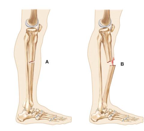А – закрытый перелом, В – открытый перелом с повреждением целостности кожных покровов