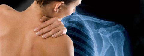 Болевой шок при переломе головки плечевой кости