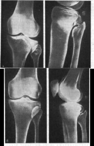 Чаще всего такие переломы происходят из-за падения на выпрямленные ноги