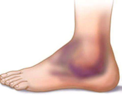 Для лечения гематомы используют рассасывающие гели и мази.