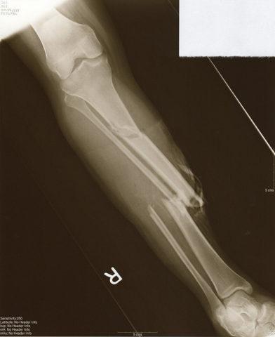 Эффективность физиолечения при переломах может быть низкой, если проводились обширные операции по реконструкции поврежденной кости