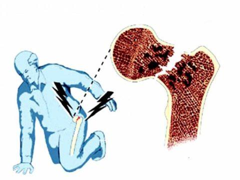 Если не оказать помощь в первые дни после травмы возрастным людям, то есть большой риск неправильного формирования костной мозоли либо, вообще, несрощения кости.