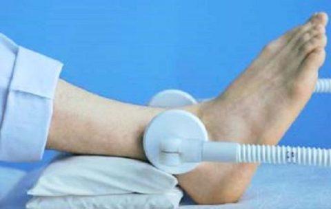 Физиотерапевтические процедуры реабилитации при переломах голени