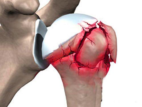 Вколоченный перелом шейки плеча: особенности травмы