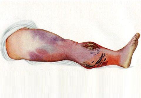 Газовая гангрена также нередко возникает после травмирования мягких тканей животными.