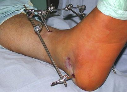 Хирургический метод лечения.