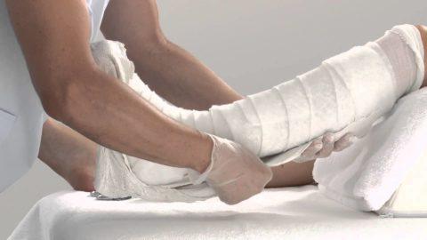 Иммобилизация конечности с помощью гипсовой повязки