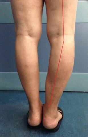 Изменение в изгибе ноги, вызванное остеоартрозом.