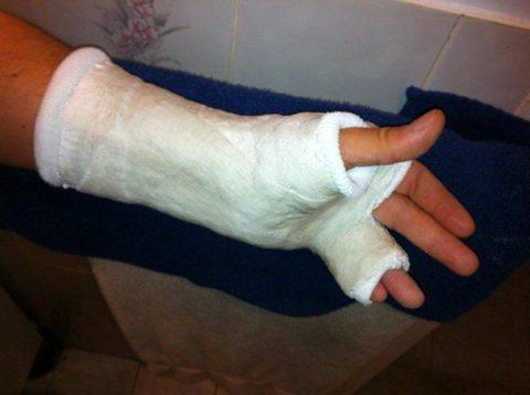 Как накладывают гипс при переломе мизинца на руке.