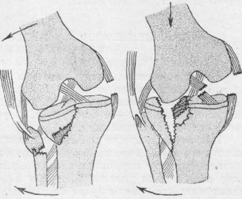 Как выглядит закрытый вид перелома голени