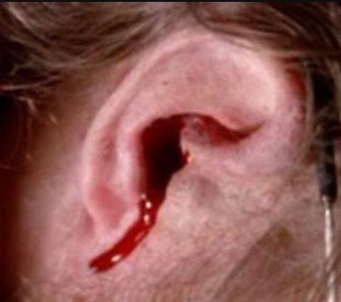 Кровотечение из ушей