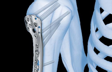 Лечение переломов головки плечевого сустава посредством остеосинтеза
