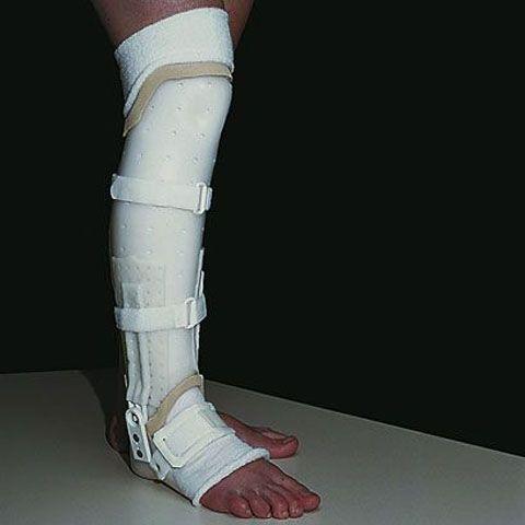 Методика наложения гипса зависит от места расположения травмы.