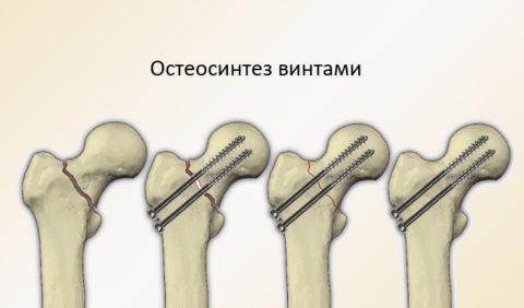 Методом остеосинтеза скрепляются части поврежденной кости.