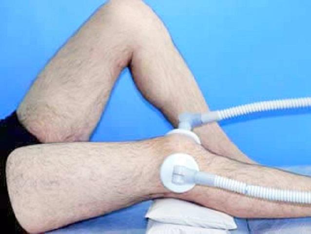 народные методы лечения ушиба сустава