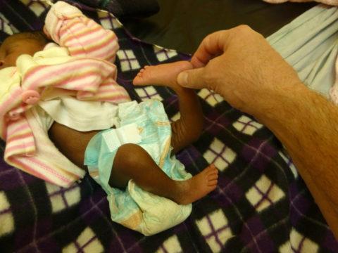 На фото младенец с вывихом ноги, полученным в процессе естественных родов.