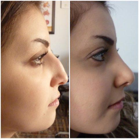 На фото выше представлен один из вариантов перелома носа до и после проведения ринопластики.