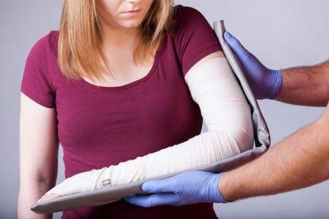 Накладывание повязки как лечение перелома плеча