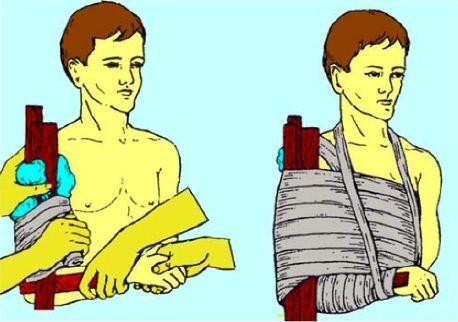 Накладывание шины для обездвижения области травмы
