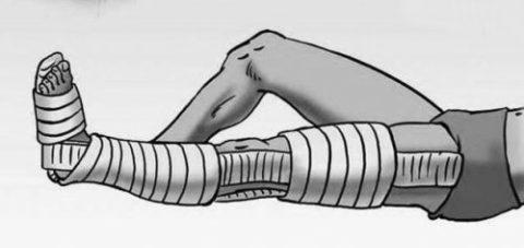Накладывание шины/повязки из гипса при переломе
