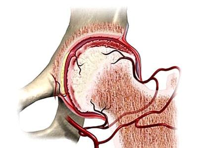 Нарушение кровоснабжения головки бедренной кости нередко приводит к ее некрозу, что решается только хирургическим путем.