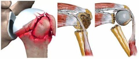 Некоторые из возможных переломов в плечевом суставе