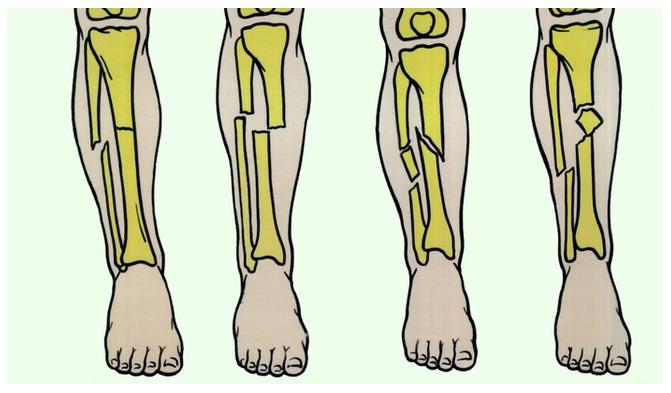 Методика обще развивающих упражнений при внутри суставном переломе плечевой кости moller nivelille moller для суставов 76 капсул